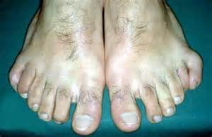 6 human toes...if only he mastered playing piano with his feet!